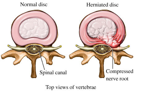 Bulging disc - medical diagram